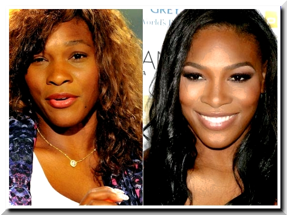 Serena Williams Before and after Plastic Surgery
