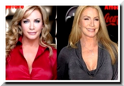 Shannon Tweed, Was There Any Knife Work On The Beauty?