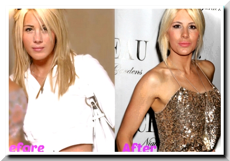 Did Shayne Lamas Have Plastic Surgery?