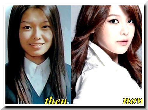 Sooyoung Plastic Surgery Scandals – Was it also another sort of Korean Beauty?