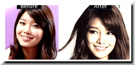 Sooyoung Plastic Surgery Scandals Was It Also Another Sort Of